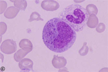 EOSINOPHIL_METAMYELOCYTE