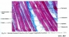 Skeletal_striated_Muscle_of_the_tongue_long_stection__2.jpg