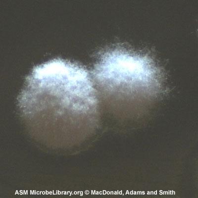 Nocardia-asteroides_Morphology_fig15